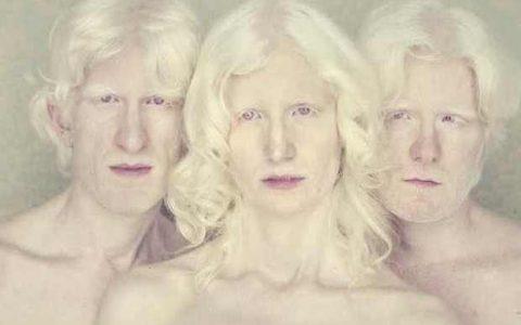 Το πολυβραβευμένο αφιέρωμα του Βραζιλιάνου φωτογράφου Gustavo Lacerda στους Albinos