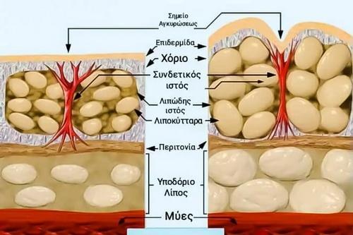 Κυτταρίτιδα: Αυτές είναι οι καλύτερες ασκήσεις που την καταπολεμούν!
